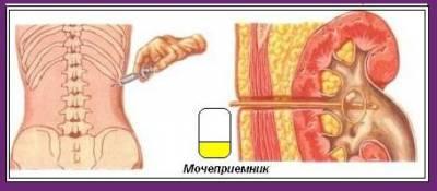 Uromed - Подготовка к дроблению